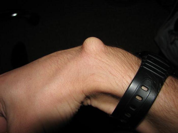 шишка на вене на руке
