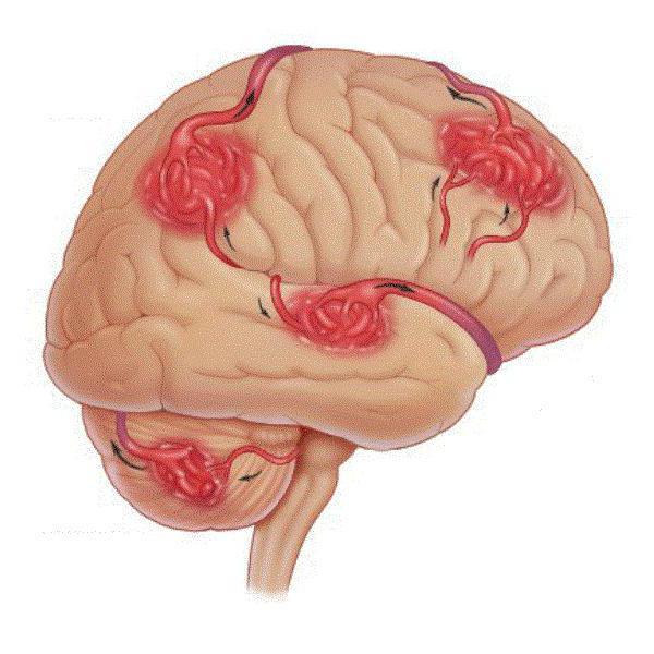 первичный неврологический осмотр