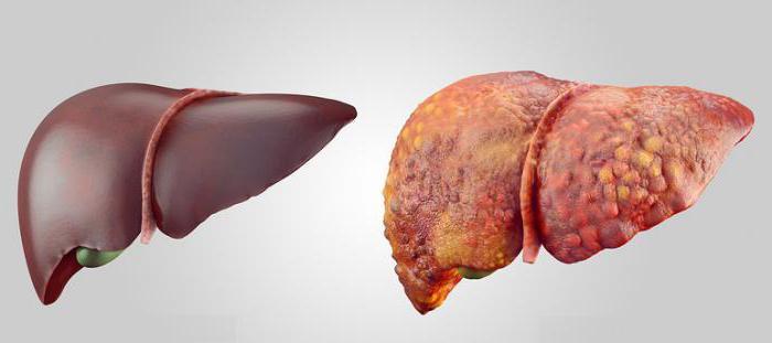 классификация тяжести цирроза печени по чайлд пью