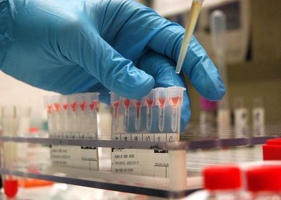 техника определения группы крови по системе аво
