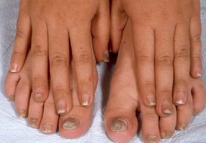 Средства от грибка ногтей на ногах