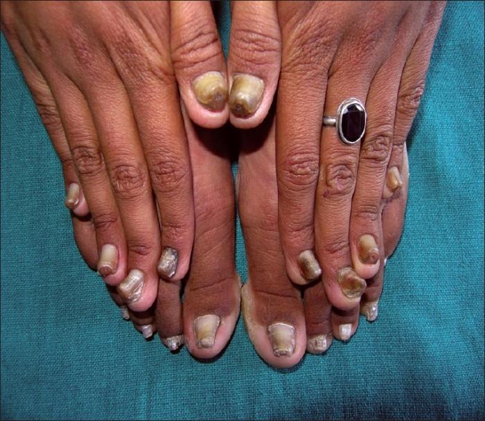 лак от грибка ногтей на ногах