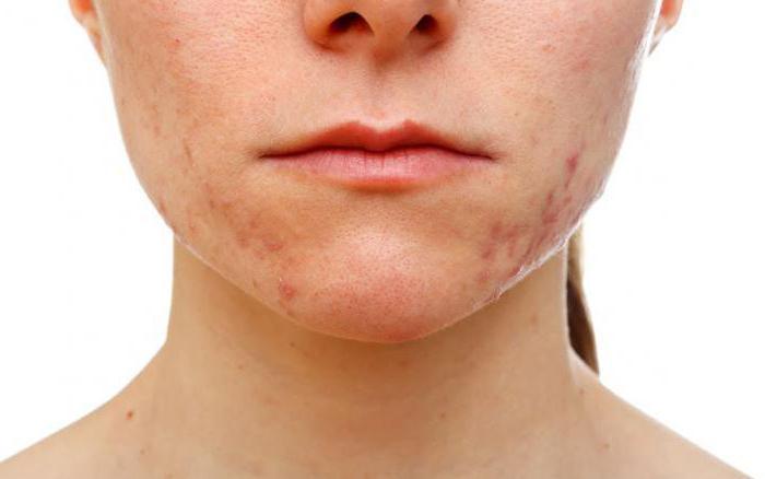 регецин от морщин отзывы косметологов