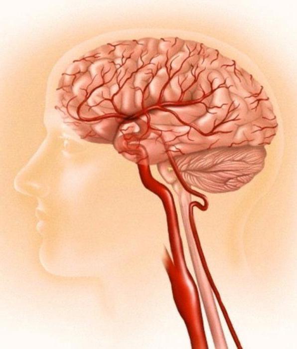 объектов продаже тромб в артерии головного мозга телефоны