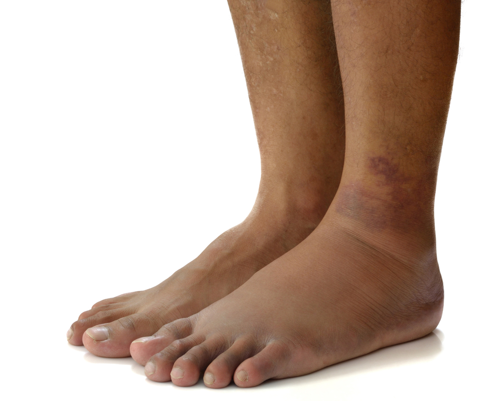 Отечность ног при диабете