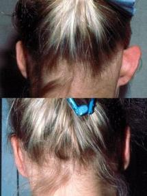операции на уши