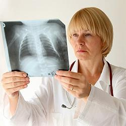 Легкая форма туберкулеза
