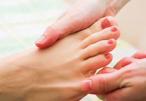 Почему немеют на ногах большие пальцы