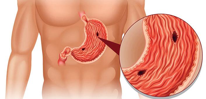 Язва желудка с кровотечением