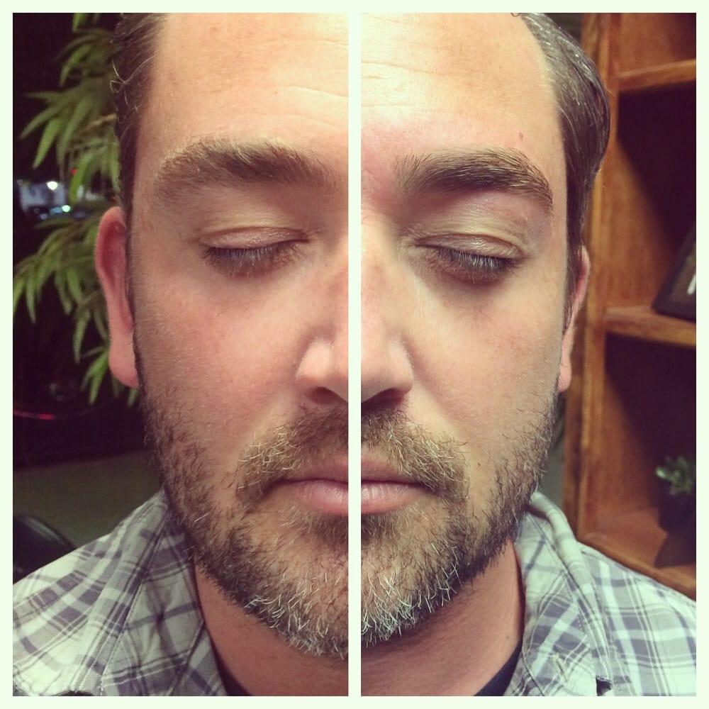 сравнение до и после процедуры
