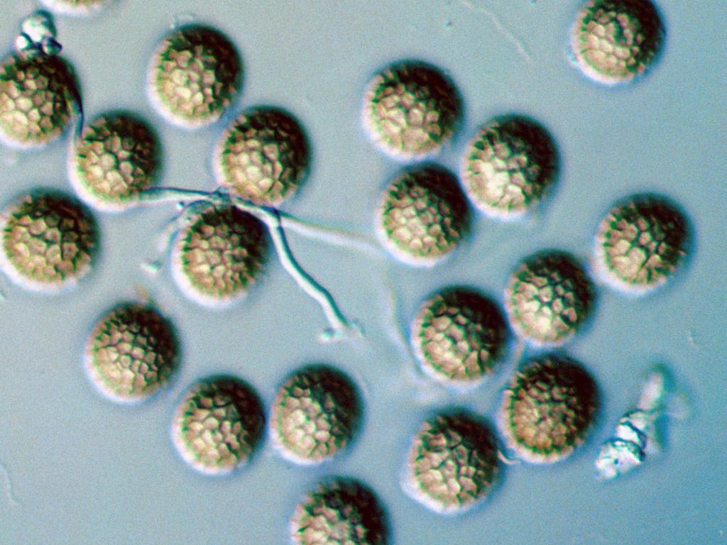 Споры грибка под микроскопом