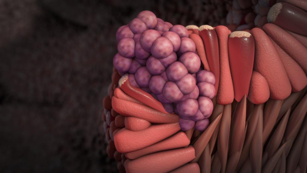 плоскоклеточный рак пищевода прогноз выживаемость