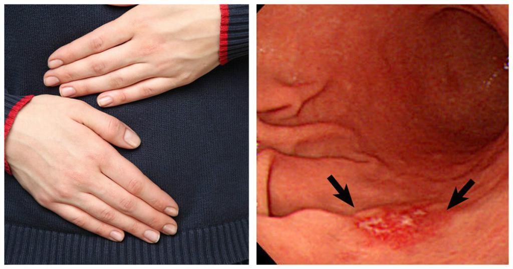 плоскоклеточный инвазивный рак пищевода