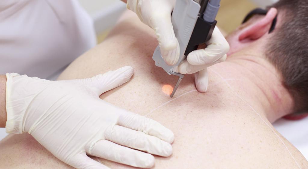 лазерное лечение бородавок