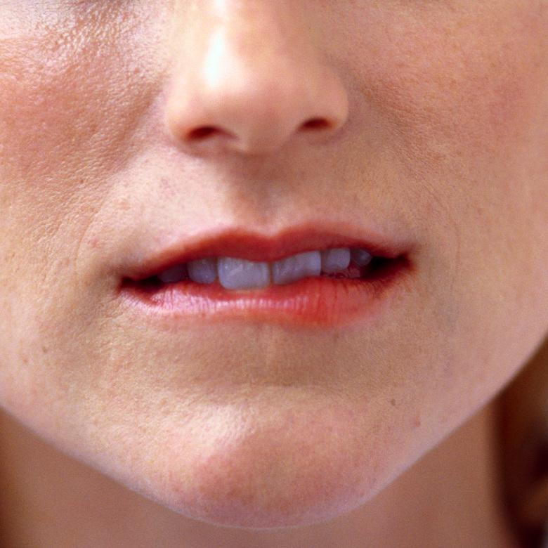 симптомы молочницы во рту у взрослых фото