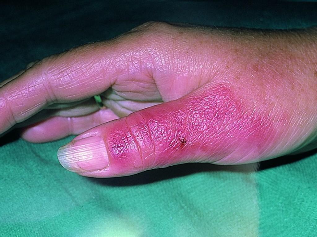 Антибиотики при роже