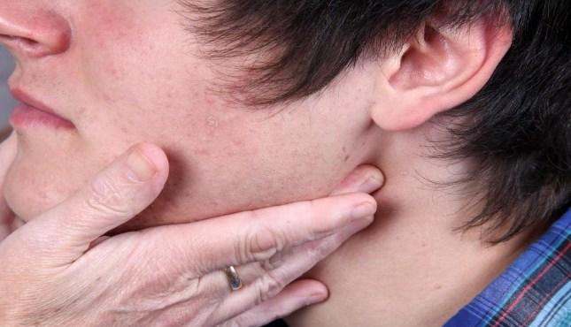 отек горла при аллергии что делать