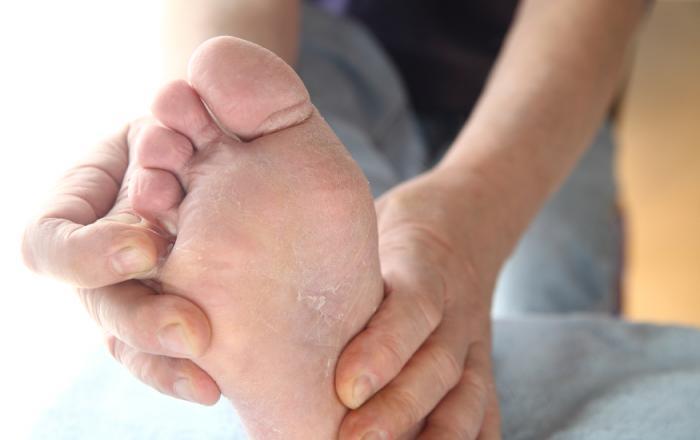 микоз на ногах фото