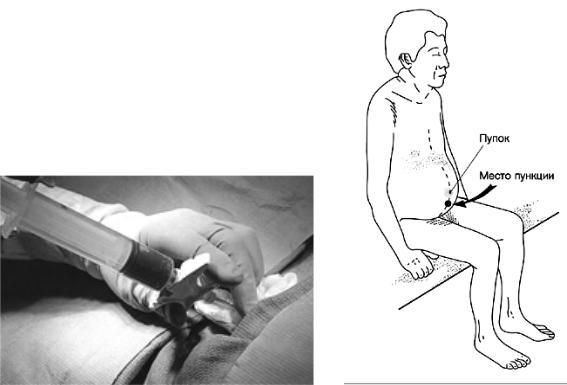 лапароцентез брюшной полости при асците техника выполнения