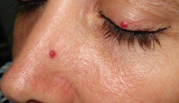 опухоль внутри носа