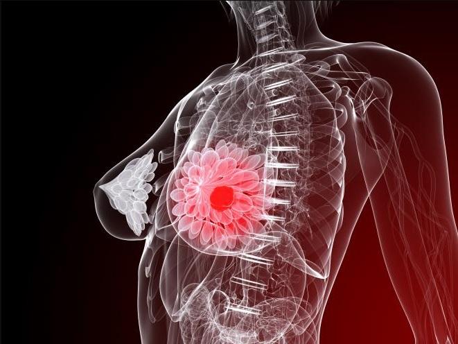 гормональная терапия при раке молочной железы в пременопаузе