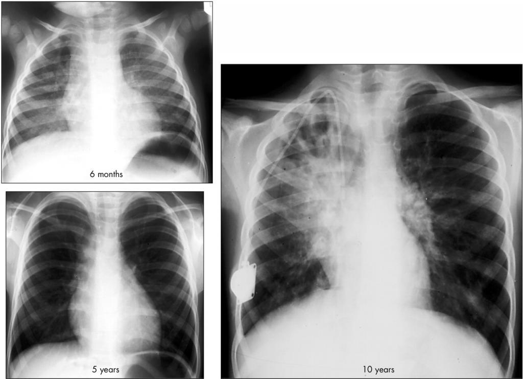 Рентгенология хронических заболеваний легких у детей