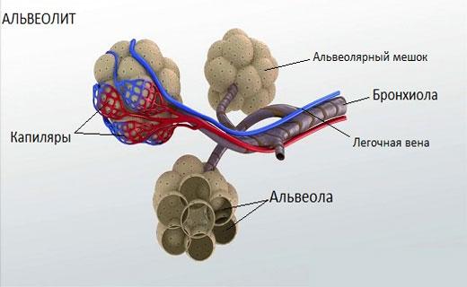 аллергические альвеолиты