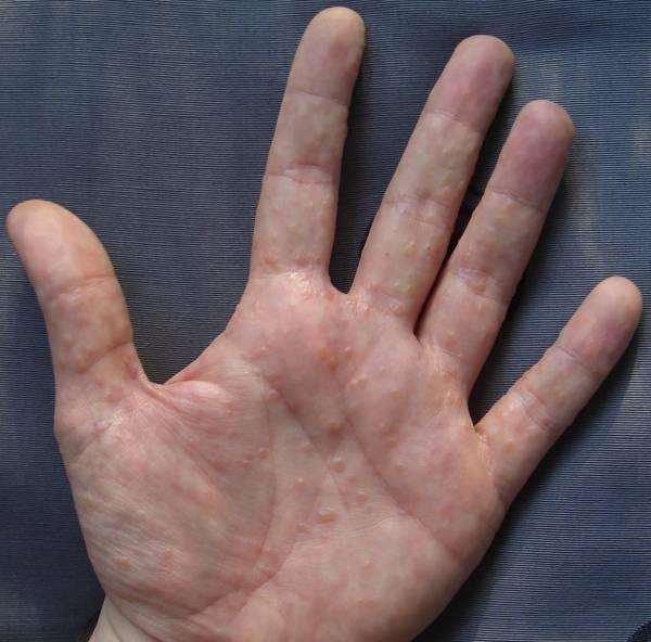 дисгидроз рук и ног
