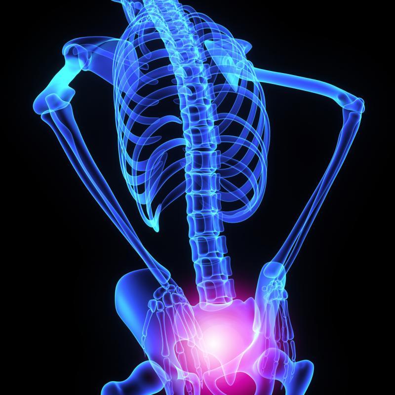 нейропатия седалищного нерва мкб