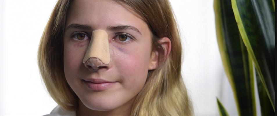 Ушиб носа