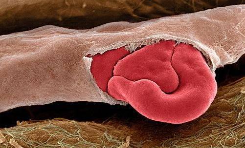 оболочки артерий мышечного типа