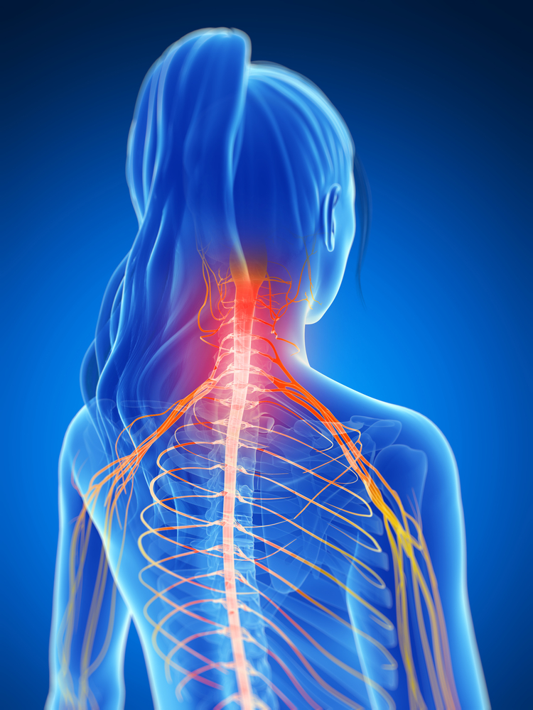 защемление шейных позвонков симптомы
