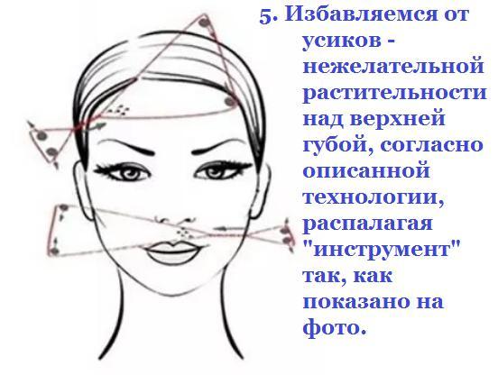 технология удаления волос нитью