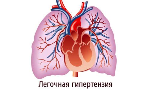 дилатация сердца и легочная гипертензия