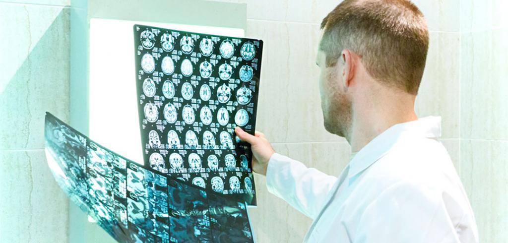 сколько лет живет человек после инсульта