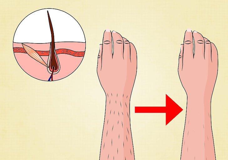 плюсы и минусы лазерной эпиляции рук