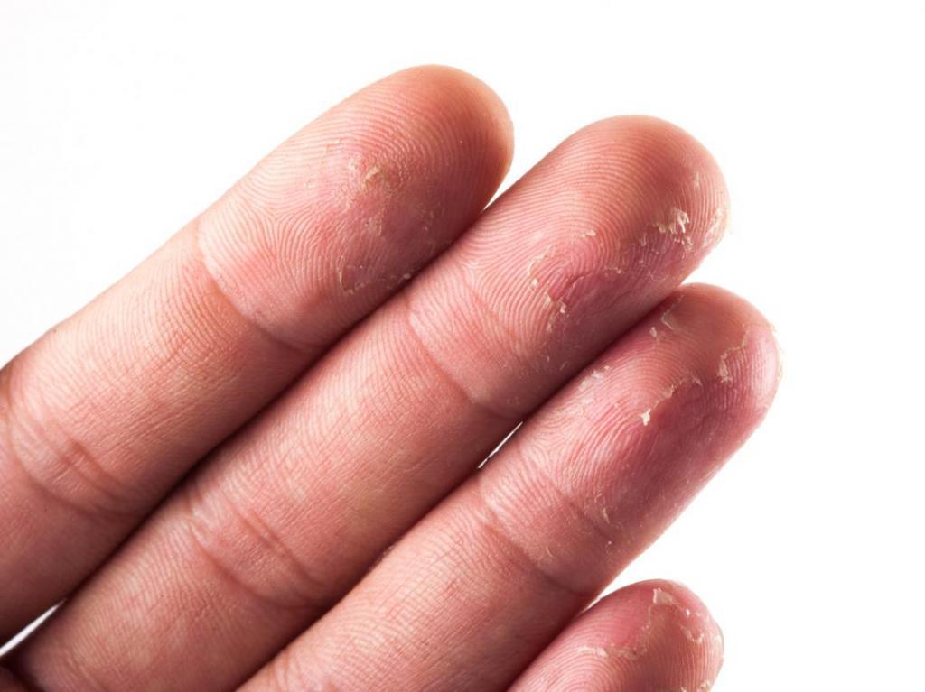 Аллергия на пальцах рук фото