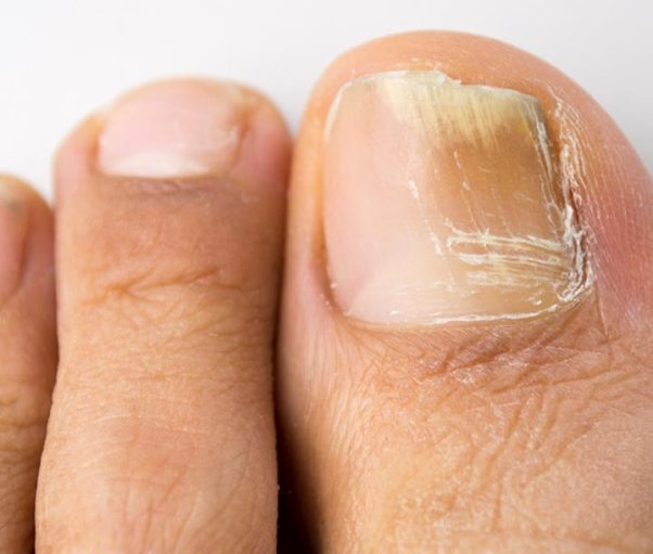 грибок большого пальца на ноге лечение
