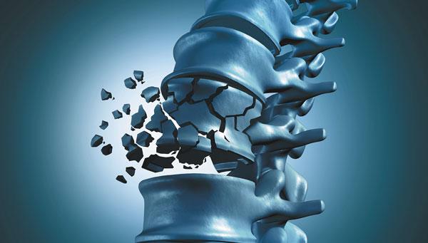 Болезнь остеопороз