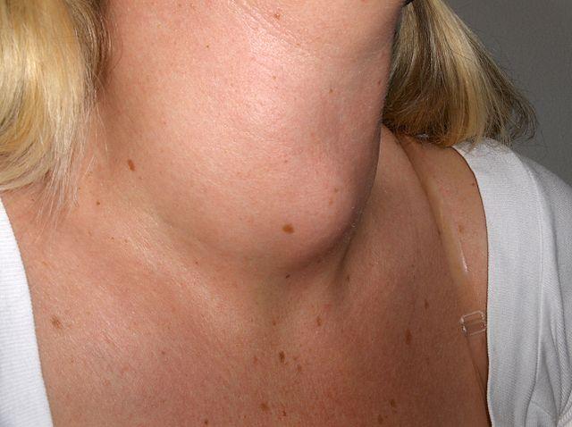 Воспаление на горле