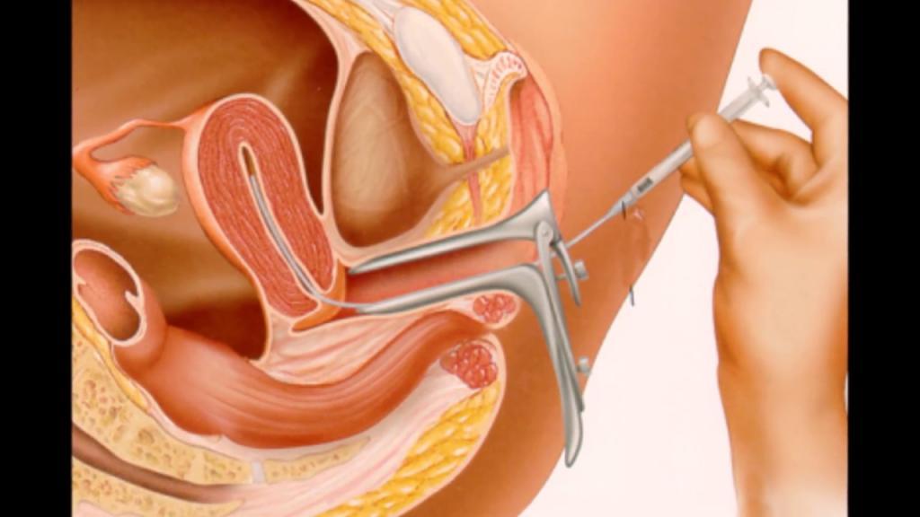 Ввод эмбриона через катетер
