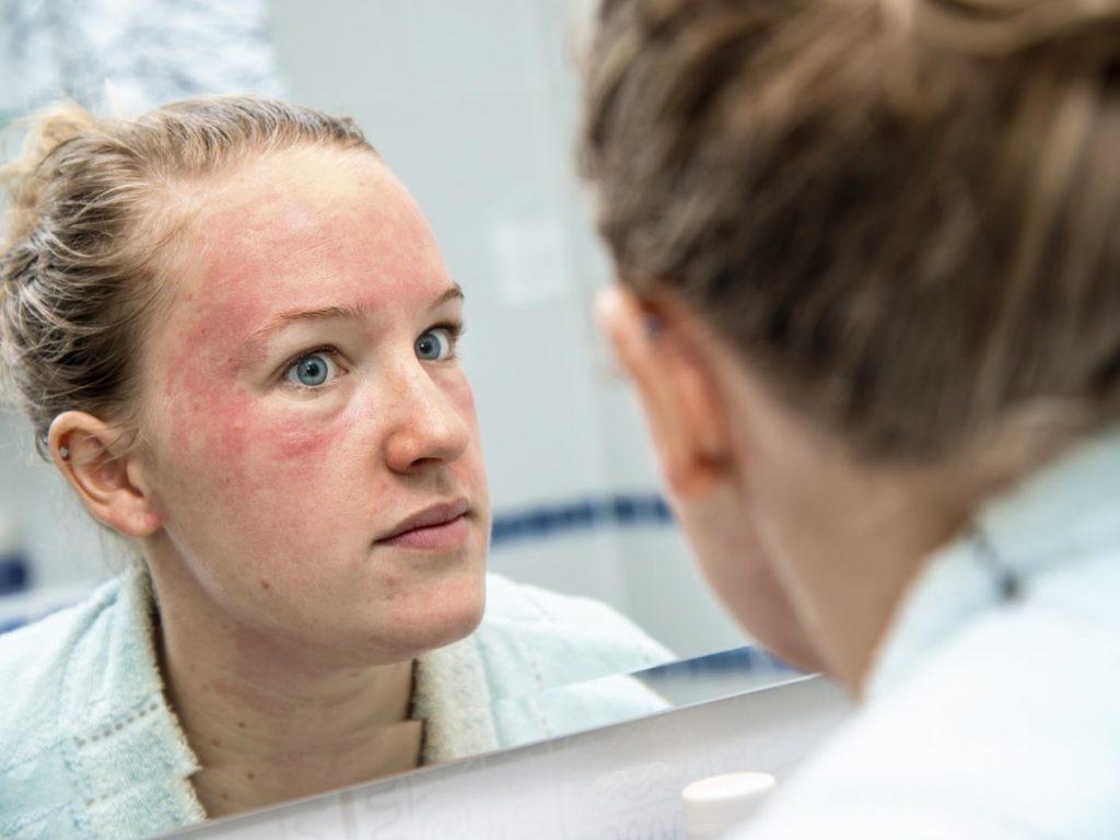 мазь от кожных заболеваний широкого спектра действия