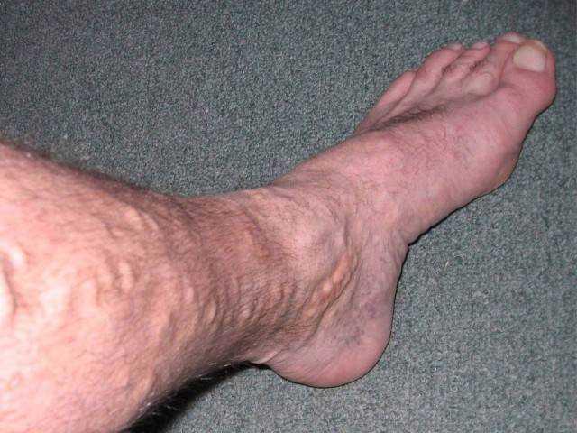 признаки тромбоза поверхностных вен нижних конечностей