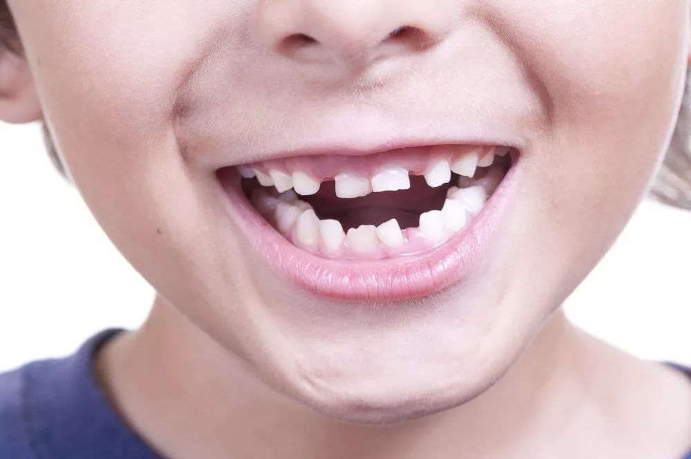 Редкие зубы у ребенка