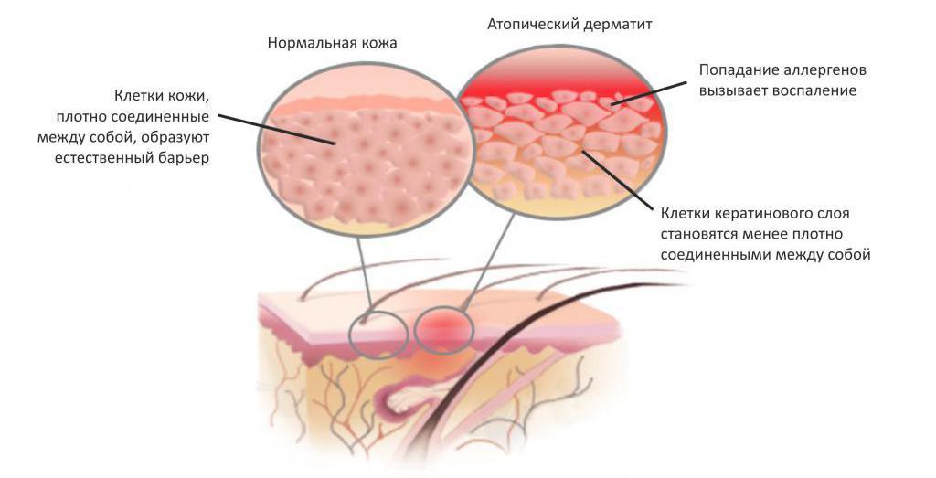 механизм развития атопического дерматита