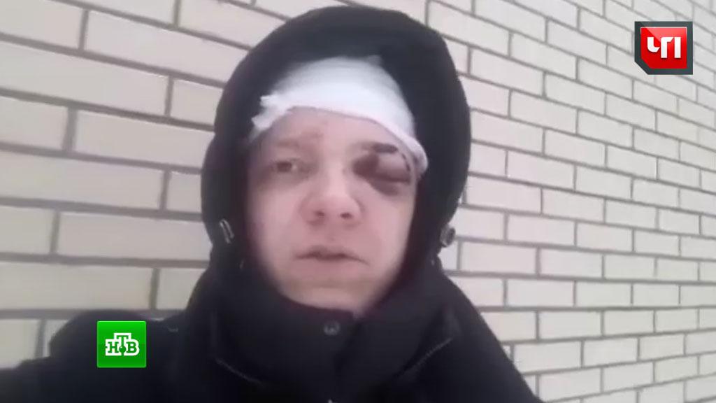 Блогера ограбили и избили