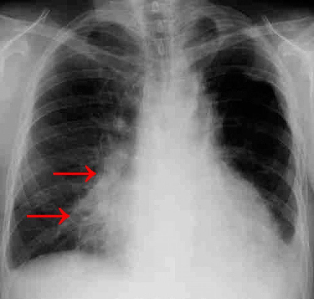 снимок пневмонии у взрослого