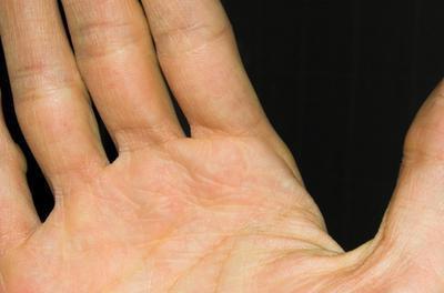 отчего немеют пальцы правой руки