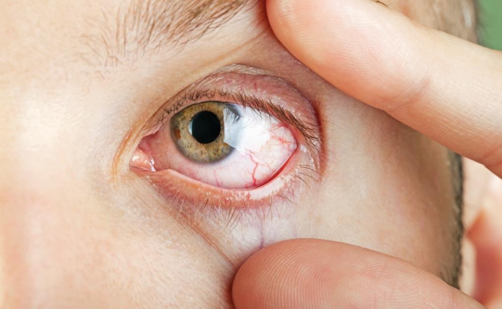 Симптомы ранения глаза
