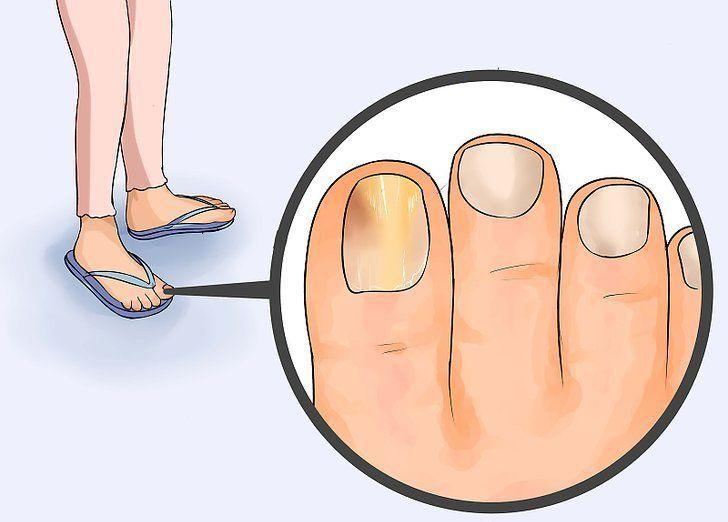 Причины почернения пальцев на ногах